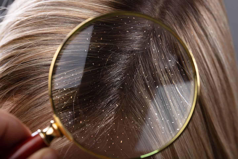Причины и лечение перхоти и выпадения волос