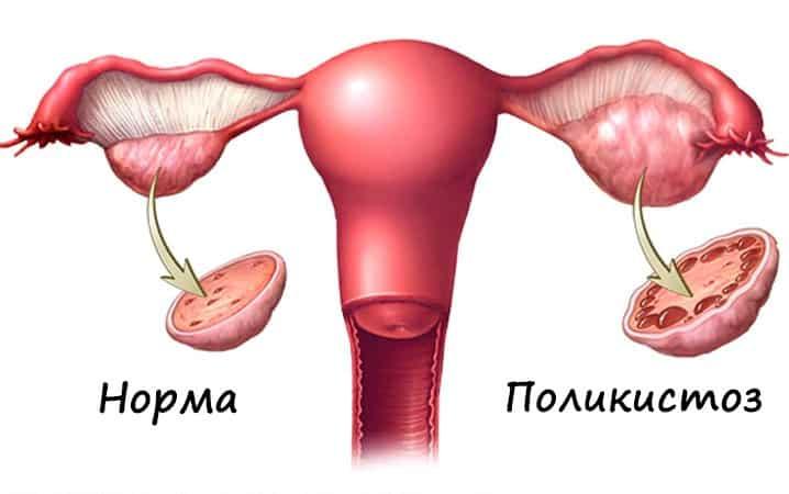 если болят яичники при овуляции - причиной может быть поликистоз