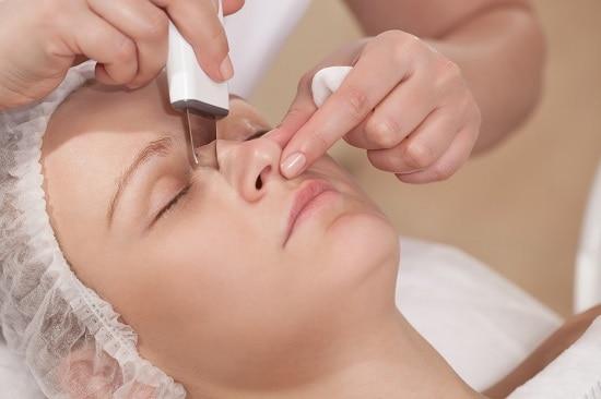 квалифицированная чистка угрей на носу