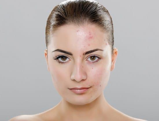 серу применяют при дерматологических заболеваниях