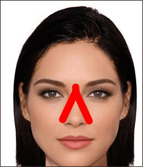 техника тейпирования носа