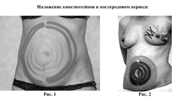 тейпирование живота после родов для похудения