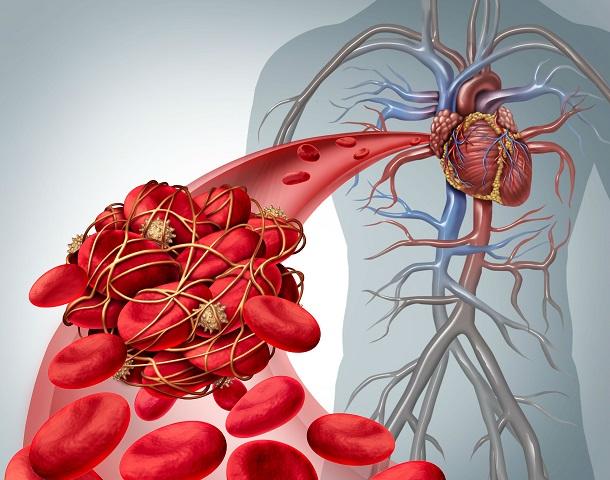 продукты повышающие свертываемость крови
